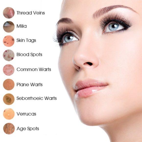Advanced cosmetic procedures Eastwood Notts
