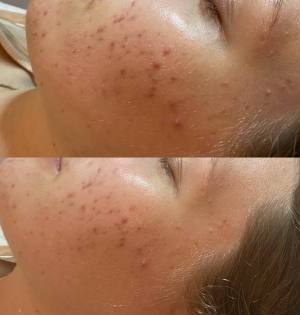 LED-Light-Therapy-Acne-Treatments-Eastwood-Beauty-Salon