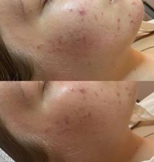 LED-acne-treatments-Eastwood-Beauty-Salon