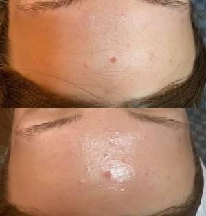 LED-treatments-for-acne-Eastwood-beauty-salon
