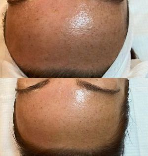 The-eastwood-retreat-dermaplaning-treatment