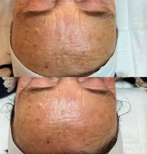 Anti-Aging-Chemical-Peels-The-Eastwood-Retreat-Beauty-Salon