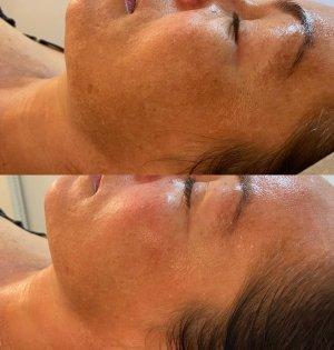 Skin-Pigmentation-Treatments-Eastwood-Beauty-Salon-Chemical-Peels