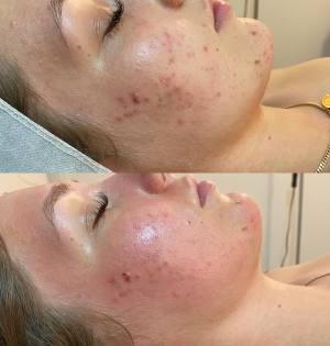 Acne-Treatments-Mesotherapy-Eastwood-Beauty-Salon