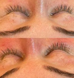 Eye-Contour-Tightening-Mesotherapy-Treatments-Eastwood-Beauty-Salon